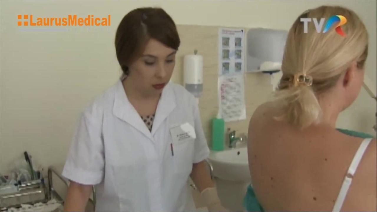 cum se îndepărtează papiloamele de la gât