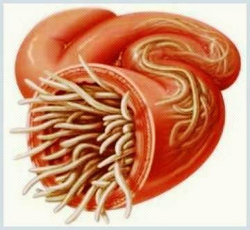 alimente în timpul tratamentului paraziților viermi în stomac decât tratat