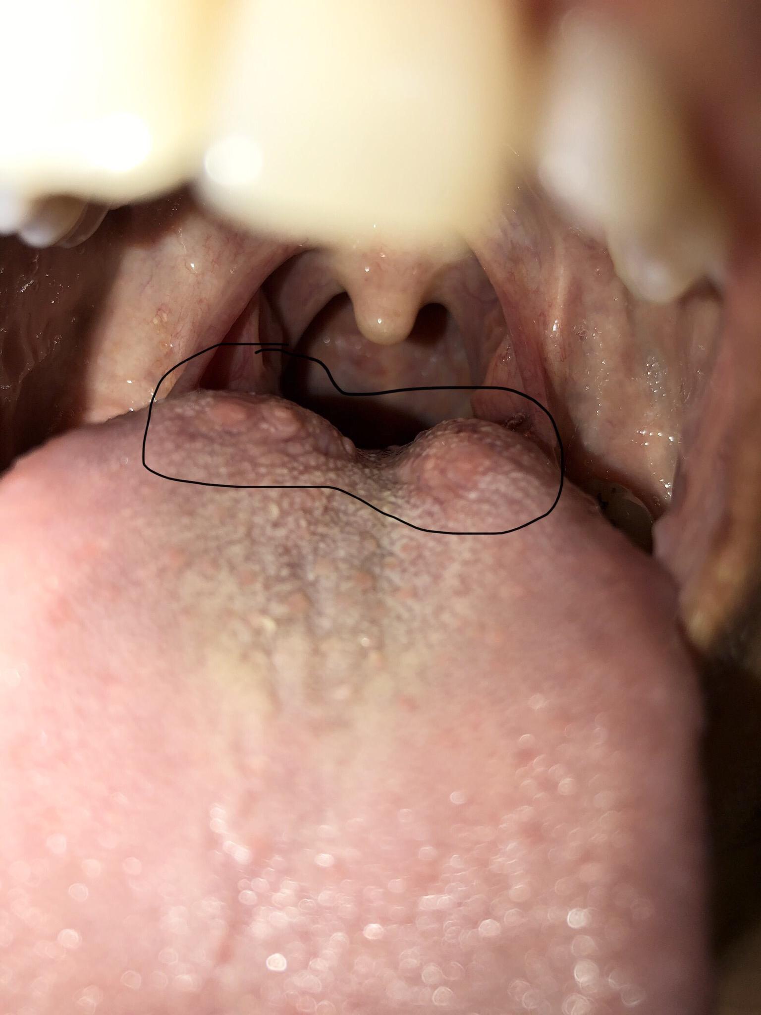 Warts on back tongue - Mouth warts on tongue,