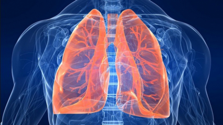 cancer de plamani manifestari picături de fergektol