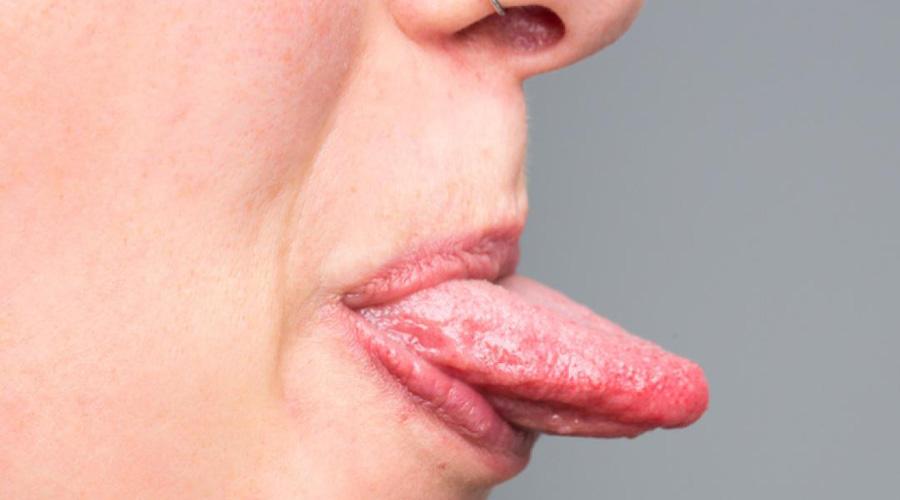 Vph en la boca sintomas tratamiento, Zungenkrebs Knochenmetastasen