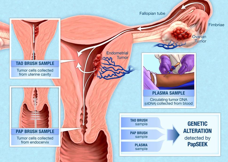 detoxifiere intestinala