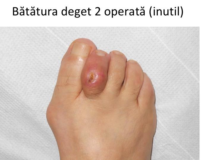 tratamentul plăgilor degetelor