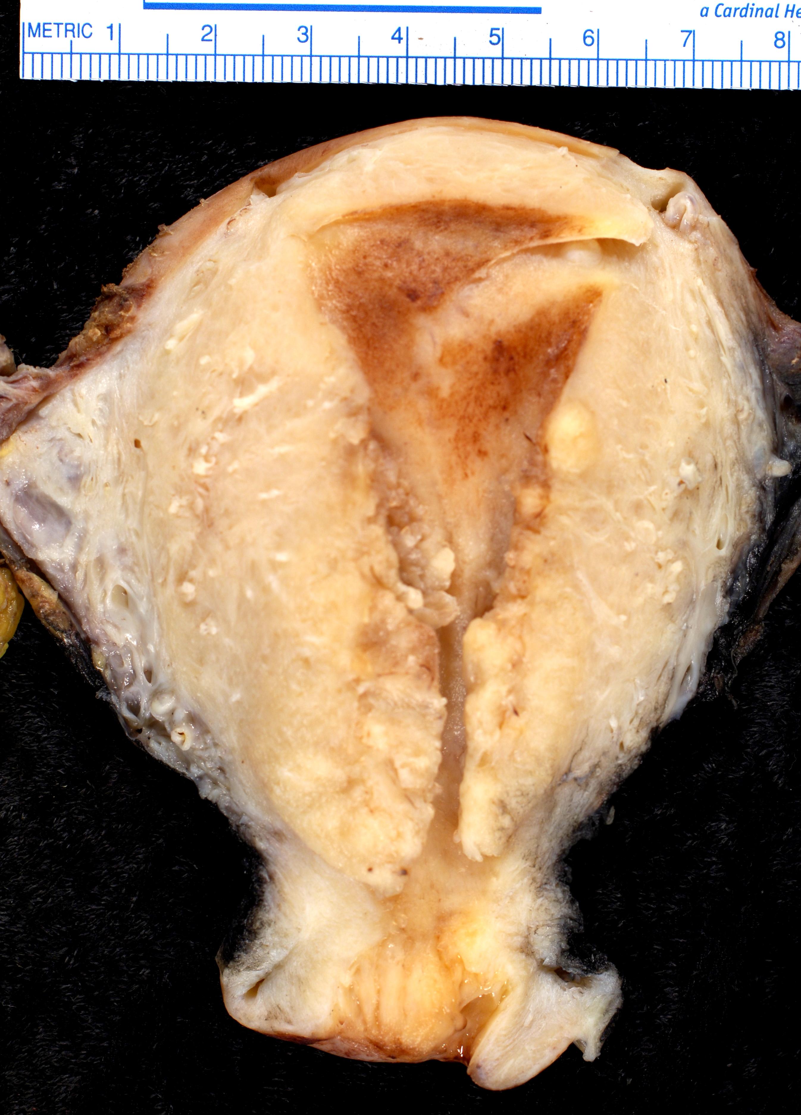 cancer endometrial tipo 2