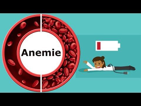 anemie simptome papiloame pe penis