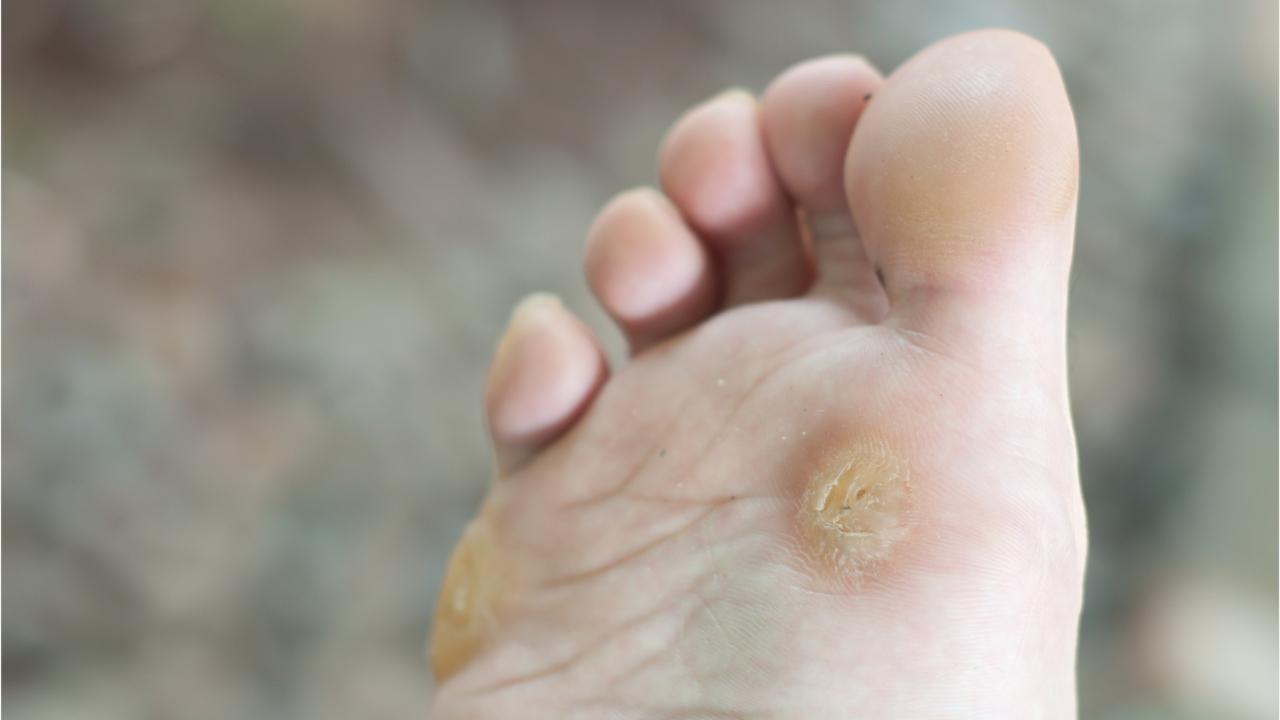 schistosomiasis jelentese simptome cancer gastric