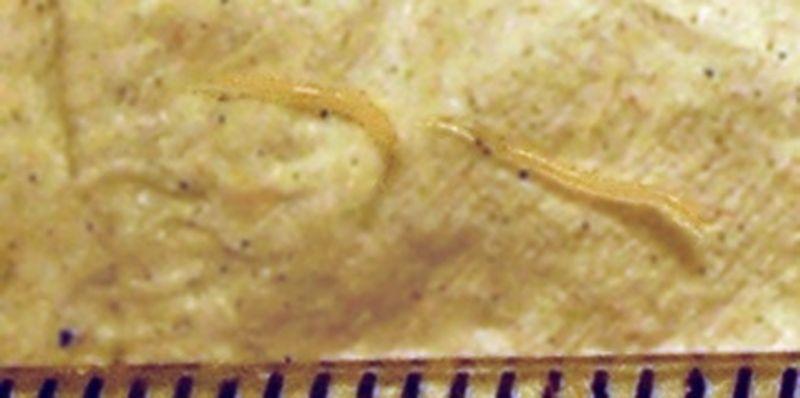 viermisorii la bebelusi metodă eficientă pentru curățarea corpului parazit