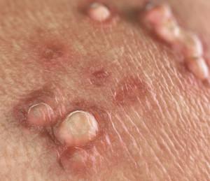 papillomavirus warzen entfernen semn condilom