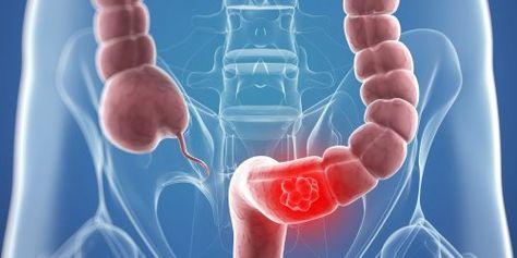 cancerul de colon la barbati