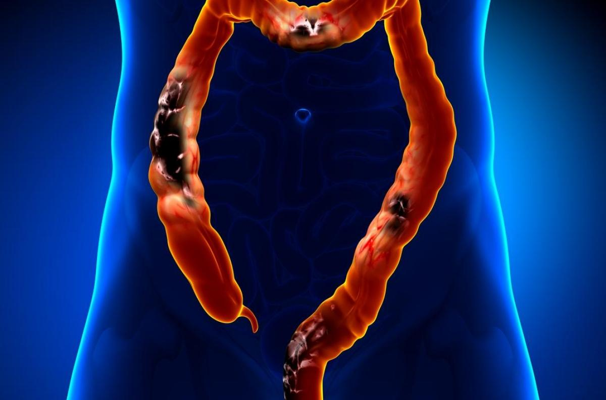 cancer colorectal jeune homme tehnica de screening a enterobiozei
