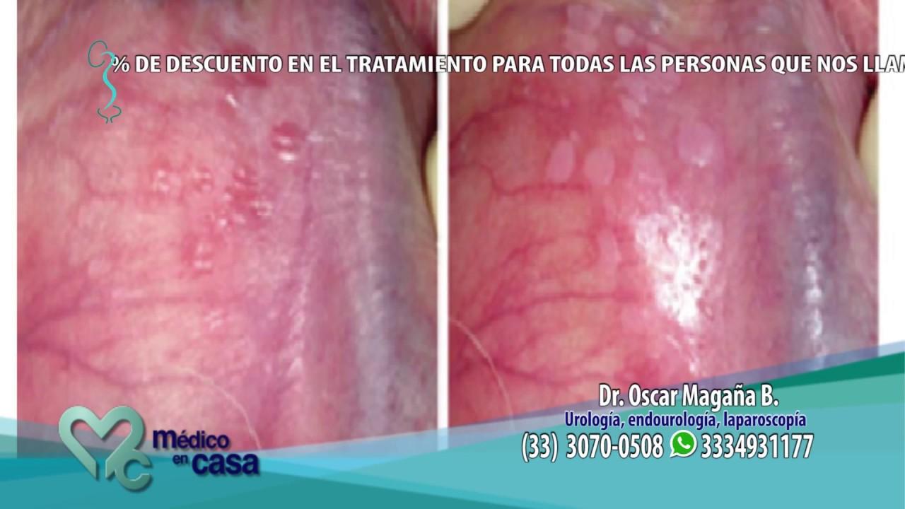 Virus del papiloma humano en mujeres tipo 16