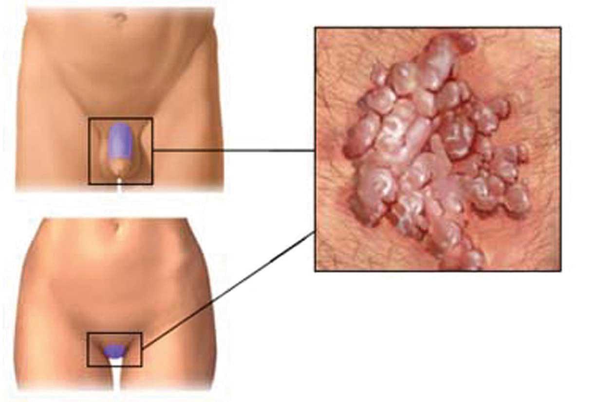 Sintomi papilloma alla gola
