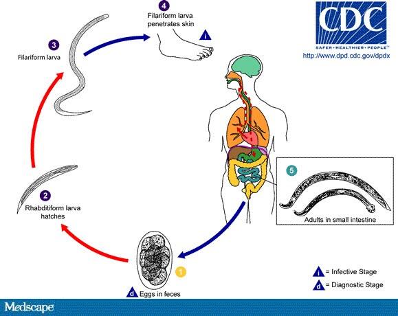 diagrama ciclului de dezvoltare pinworm