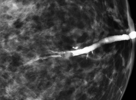 Diffuse papillomatosis breast, Medicina si farmacie