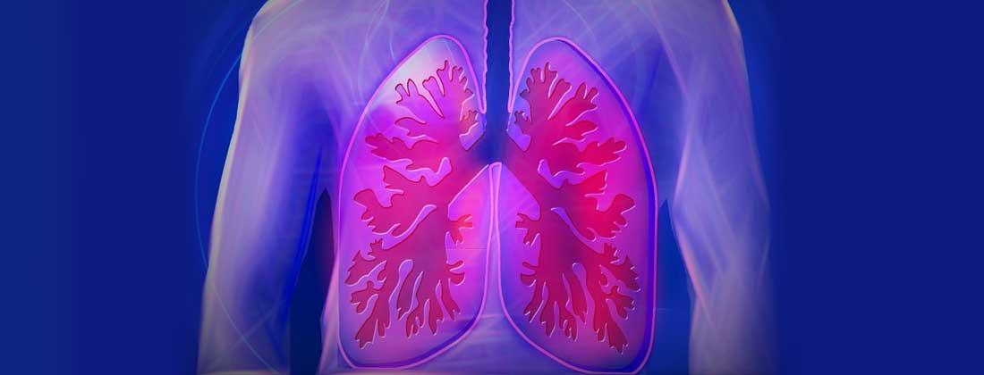 Simptome cancer de plamani