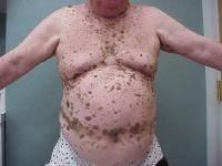 hpv virus kod muskaraca slike versuri parazite germinate