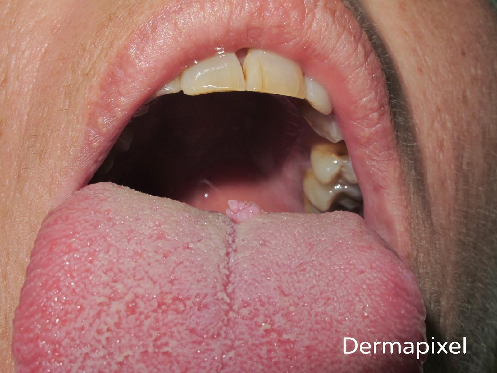 medicamente pentru boala viermilor pronounce helminthic