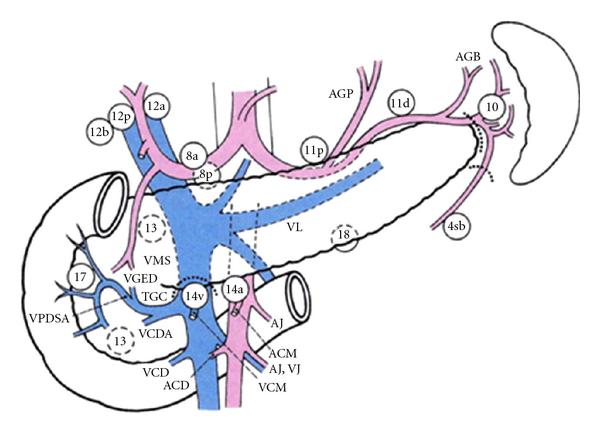 gastric cancer lymph node dissection tratamentul papilomului intestinal