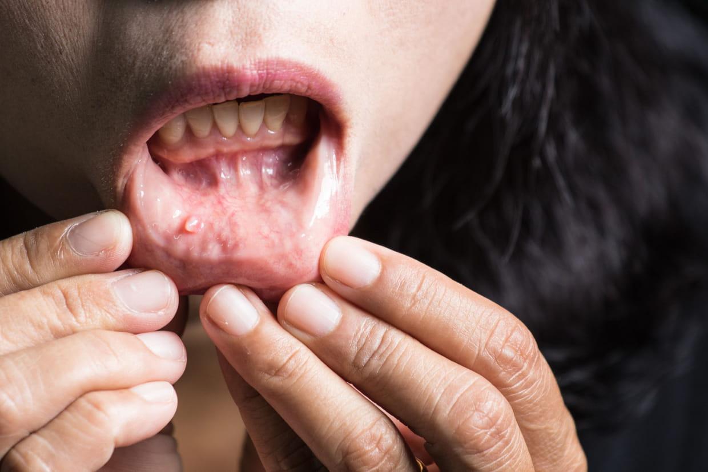 Papillomavirus traitement bouche. Papillomavirus humain bouche - Hpv virus colonoscopy