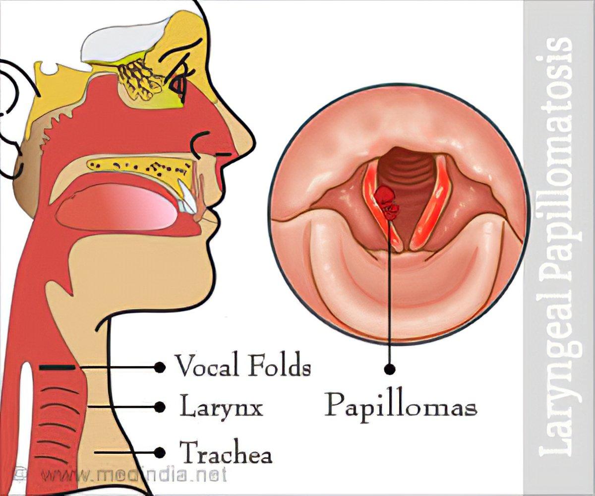 Papilloma of larynx Laryngeal papilloma etiology
