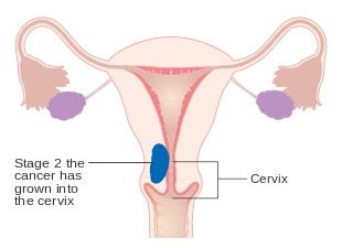 Hpv endometrial cancer, Endometrial cancer from hpv