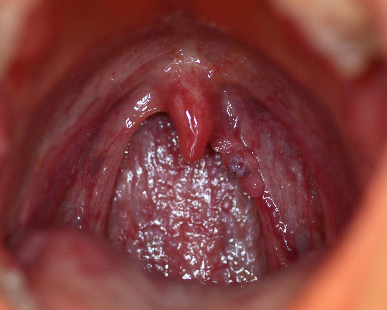 comprimate parazite în timpul sarcinii
