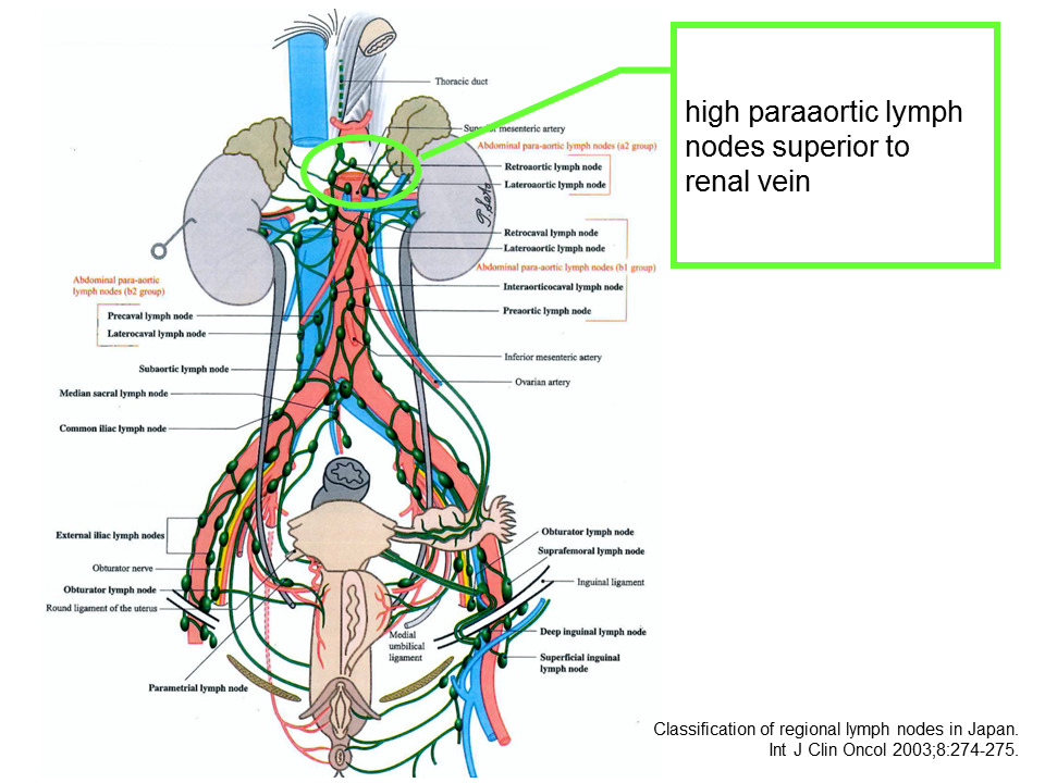 Peritoneal cancer lymph nodes. Much more than documents. - Peritoneal cancer lymph nodes