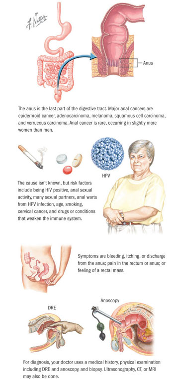 human papillomavirus and colon cancer creșteri similare cu condiloamele