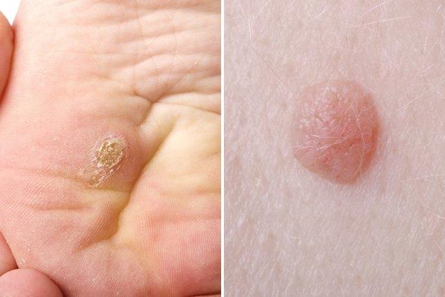El virus del papiloma humano desaparece Cauza varicelor de sânge vâscos