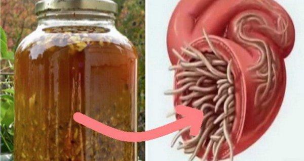 Fara bacterii, viermi…