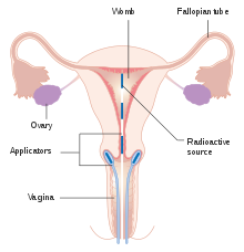 endometrial cancer emedicine