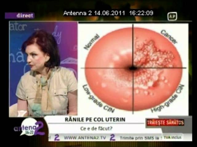 eroziunea condilomului colului uterin