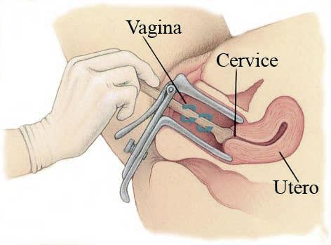 esame papilloma virus preparazione cum să eliminați forul verucilor genitale
