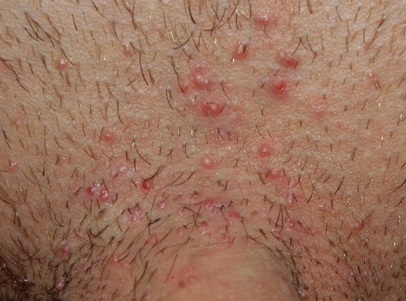 negi genitale ale zonei inghinale simptome ale ectoparaziților la om
