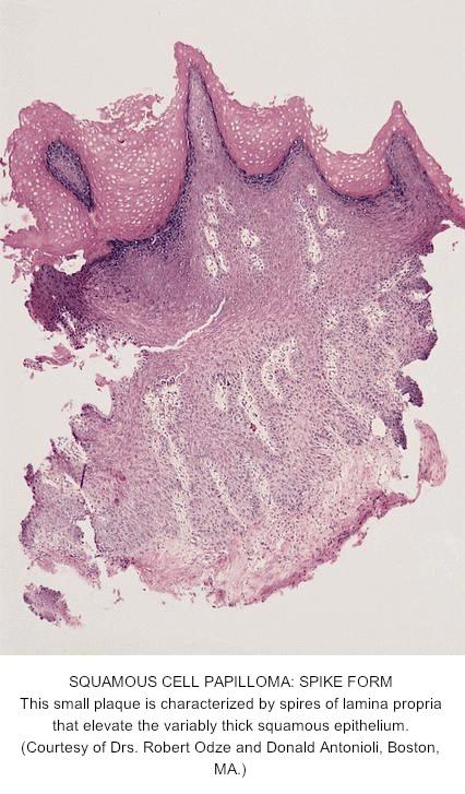 Squamous papilloma esophagus pathology - topvacanta.ro