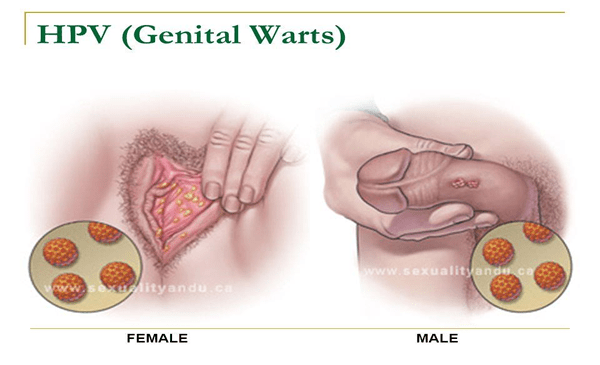 Hpv genital warts lead to cancer