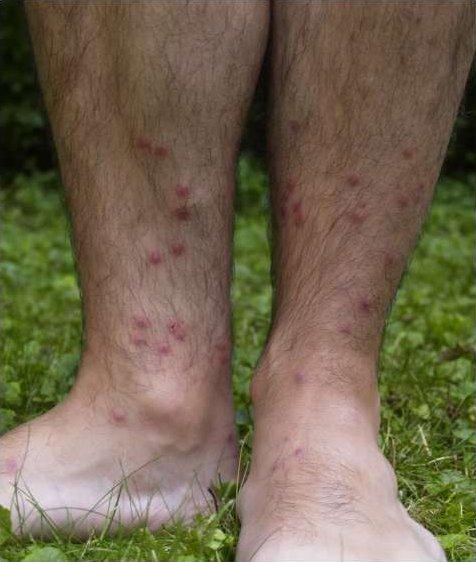 enterobius vermicularis magyarul rimedi contro papilloma virus