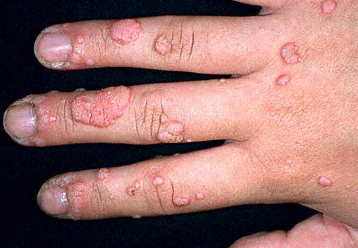 Hpv virus finger warts. Hepatic cancer review