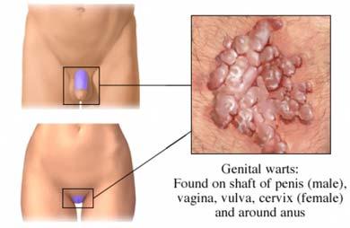 este posibil să trăiești cu negi genitale