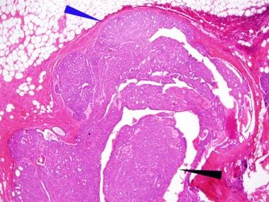 intraductal papilloma in situ