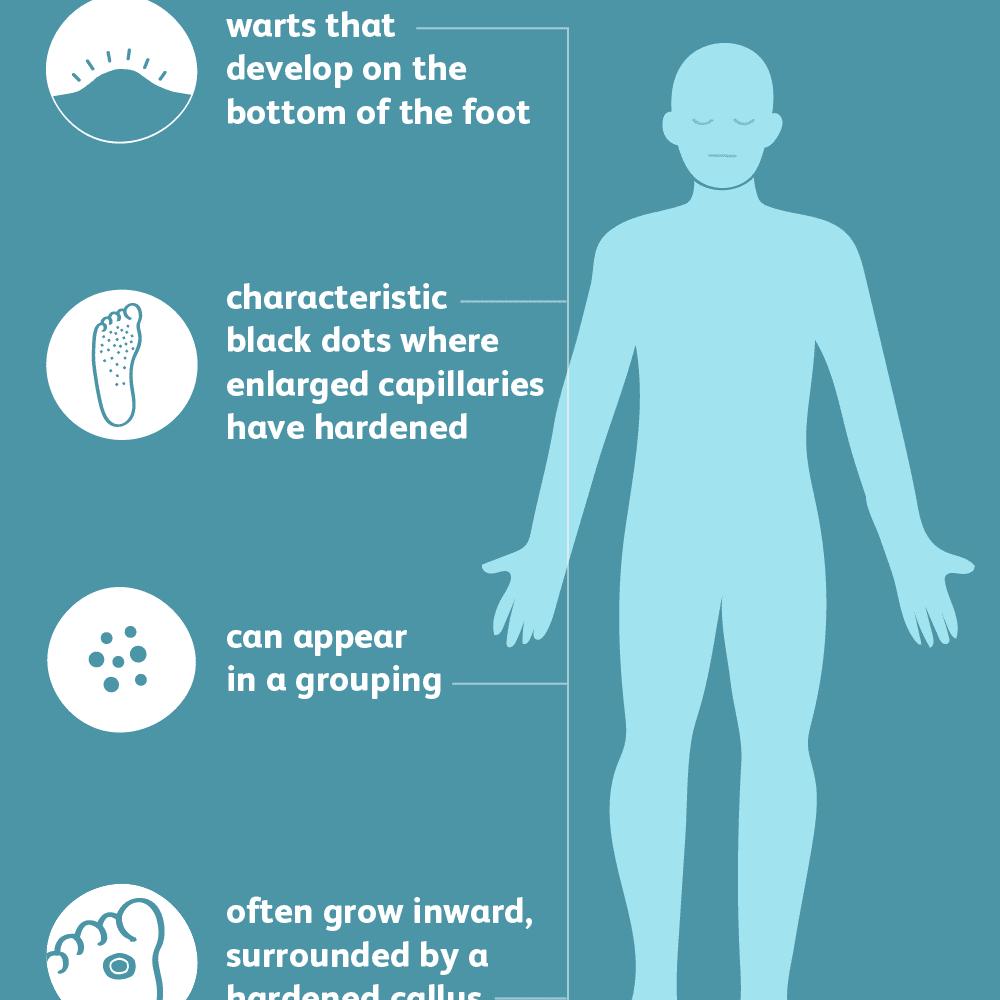Wart virus on foot