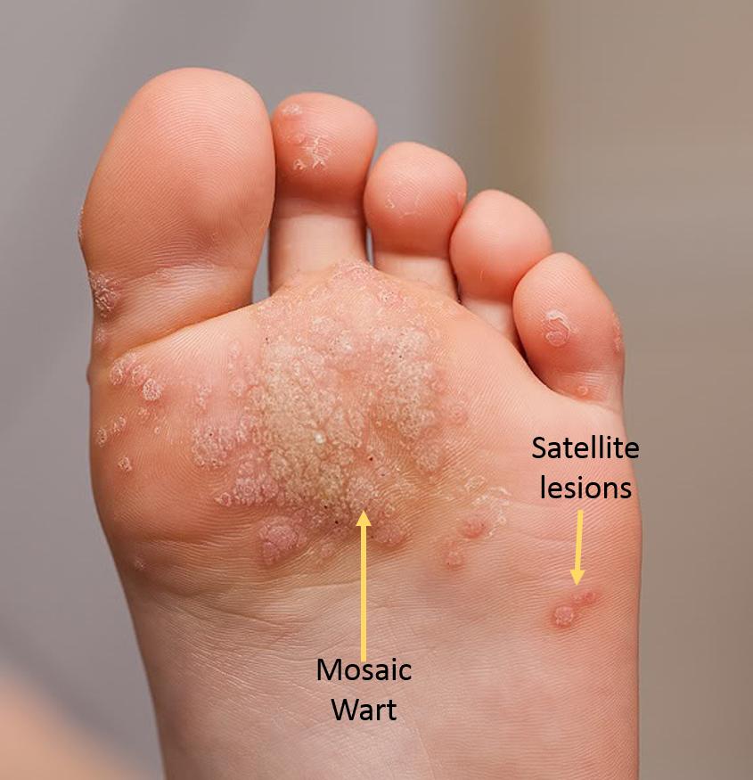 Category:Toes, Wart treatment on feet - Wart treatment toe