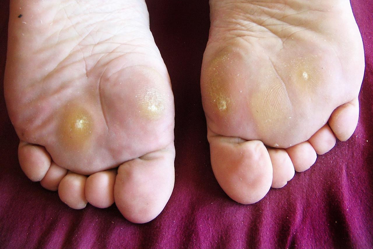 foot wart versus corn