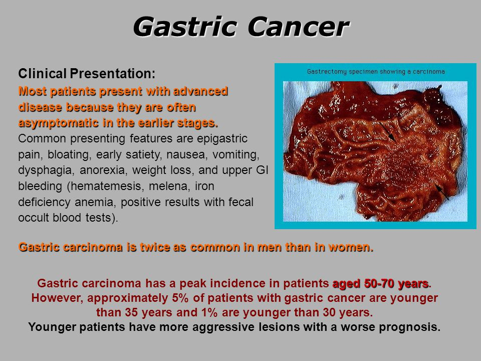 gastric cancer and anemia