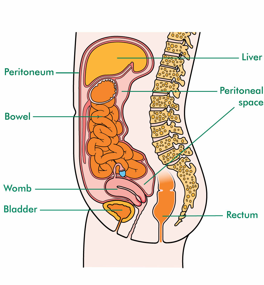 gastric cancer with ascites