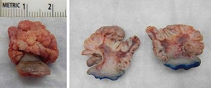 giant papillomas neuroendocrine cancer ke lakshan