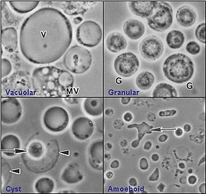 Giardia și coccidia, Parazitozele intestinale la copii