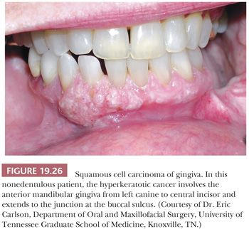 Gingival papilloma causes. Laser treatment in dentistry