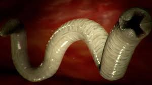 Gliste u stolici kod dece Helminth infections who Paraziti gliste