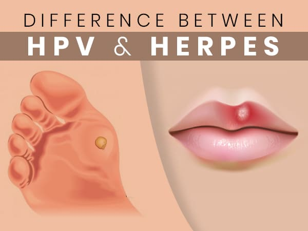 Hpv or genital herpes Gastric cancer pain